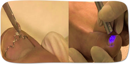 人口爪でワイヤーの固定部分をカバーします